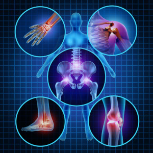Diagram showing arthritic joints